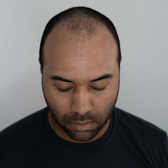 scalp micropigmentation training